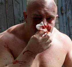 sheremet bloody1 Alarming LGBT News in Ukraine: Kiev Pride Cancelled, Gay Leader Attacked